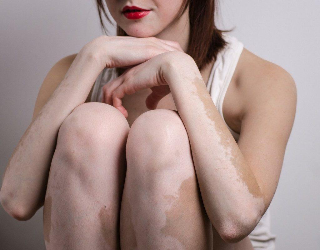 La Vitiligine: cos'è e come si può alleviare