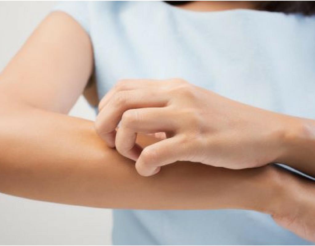 Le 5 malattie della pelle più comuni